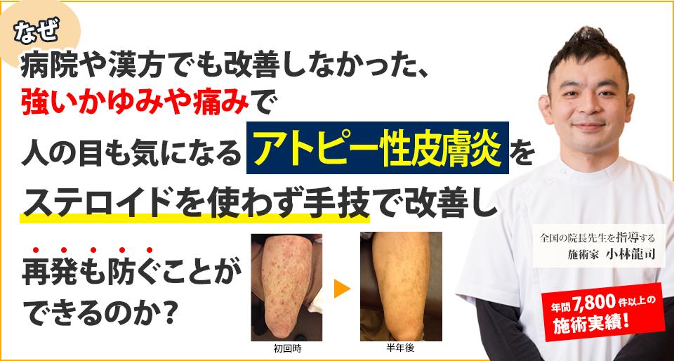 なぜ病院や漢方でも改善しなかった、強いかゆみや痛みで人の目も気になるアトピー性皮膚炎をステロイドを使わず手技で改善し再発もふせぐことができるのか?