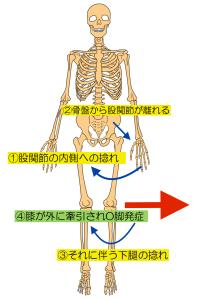 o脚モデル のコピー 2
